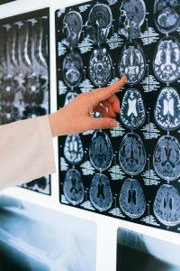 Hersenenscan